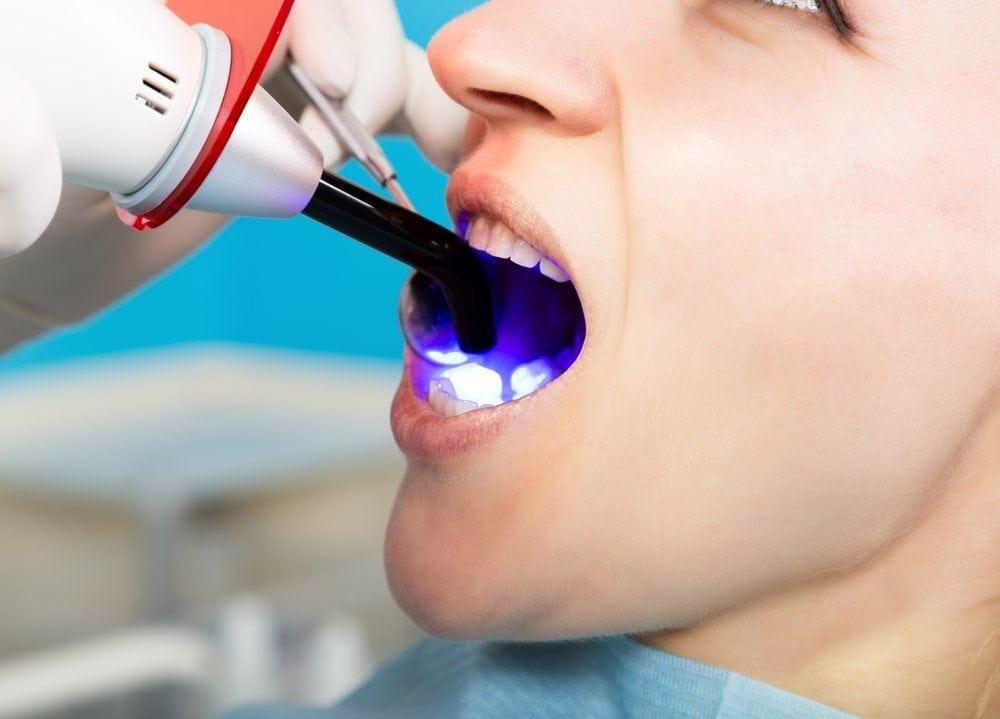 patient receiving dental bonding procedure from doctor